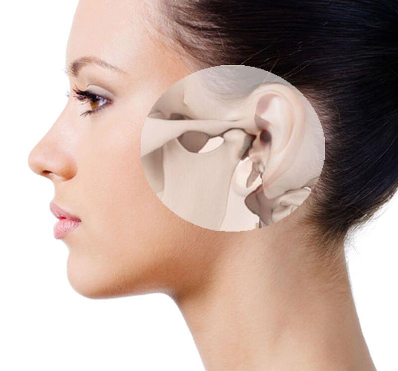 cirurgia da atm