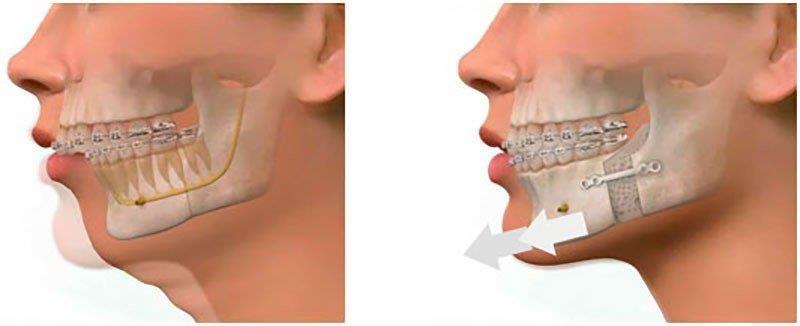 cirurgia de dente do siso