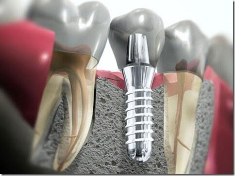 cirurgia de implante