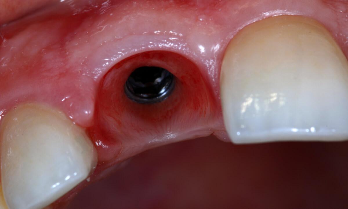 cirurgia dentária implante