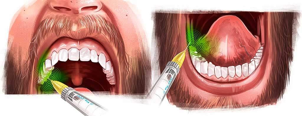 cirurgia do dente siso