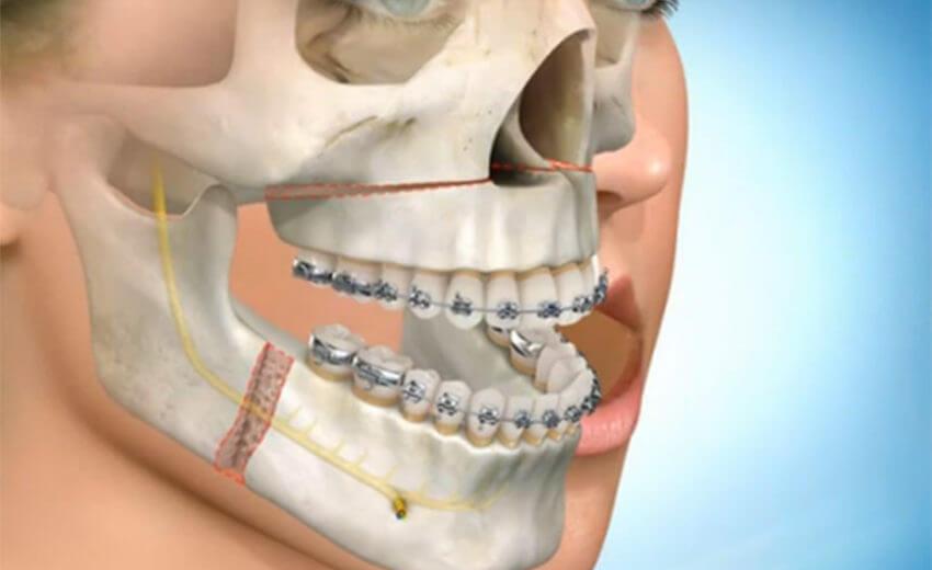 cirurgia extração de siso