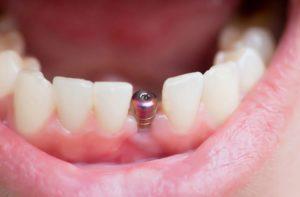cirurgia mandibular