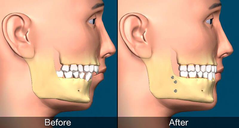 cirurgia ortognatica classe 2 preço