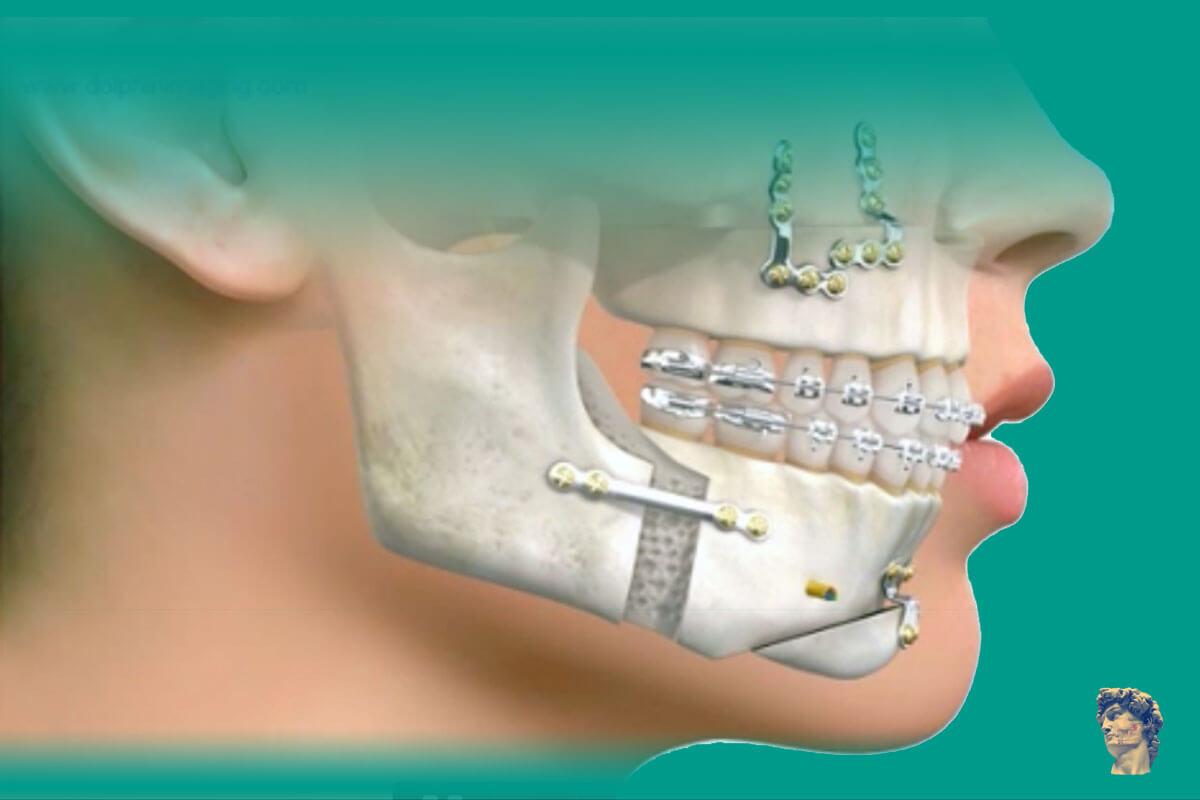 cirurgia ortognatica valor
