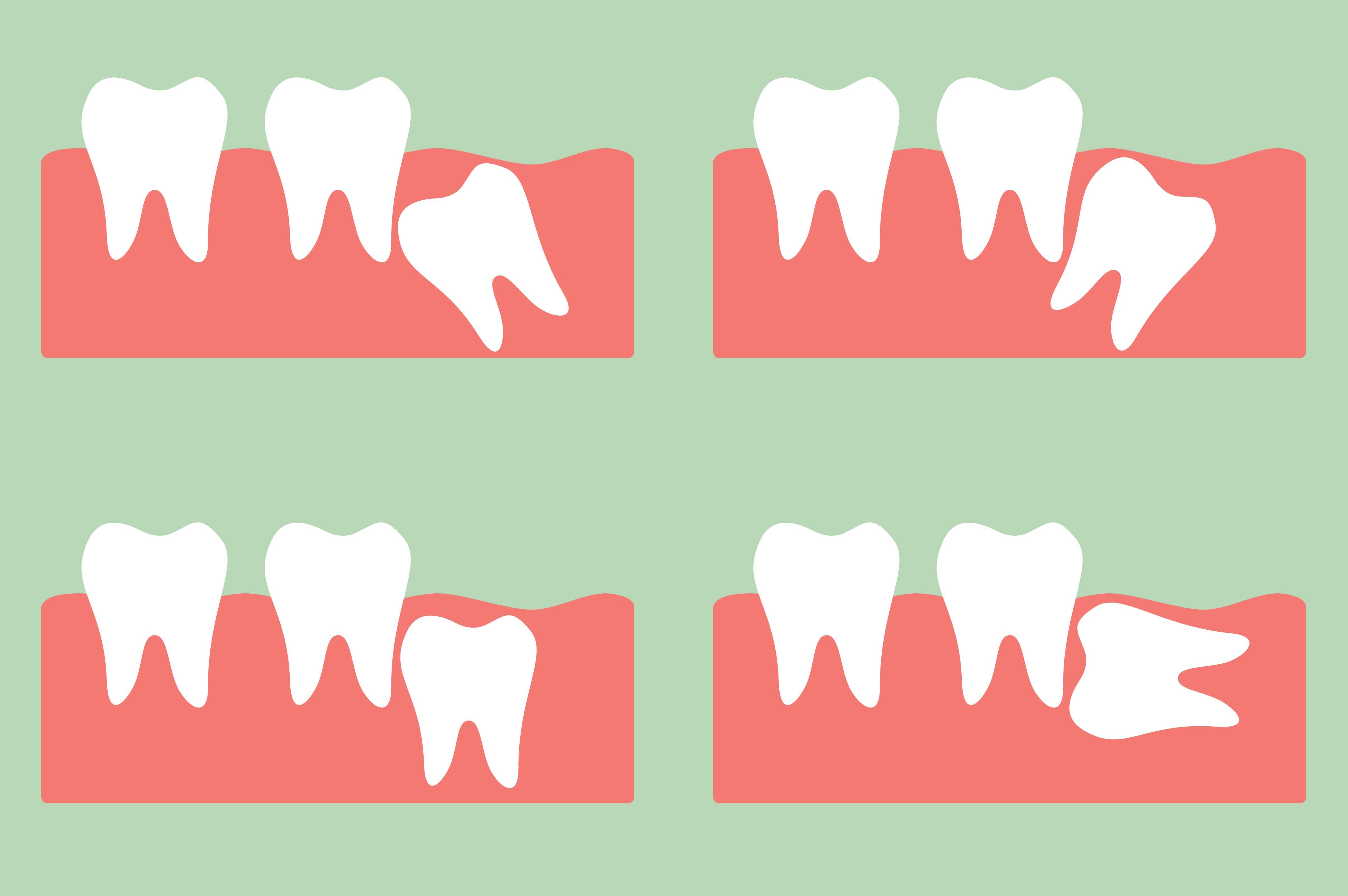 cirurgia para arrancar dente siso