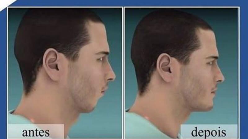 cirurgia para implante dentário