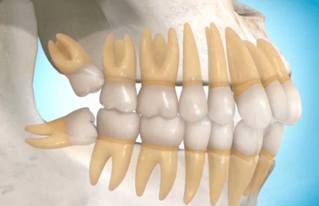 cirurgia para retirada do siso