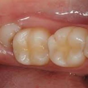 cirurgia para tirar dente do siso