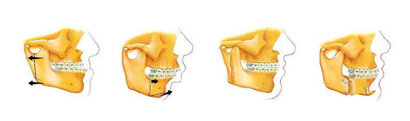quanto custa cirurgia ortognática