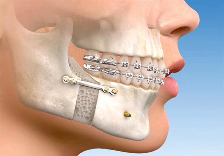 quanto custa uma cirurgia ortognatica