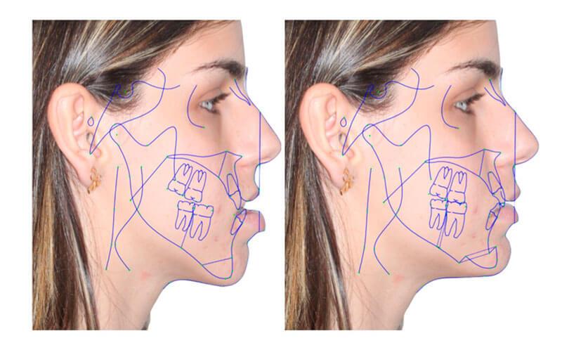 cirurgia de retirada do siso