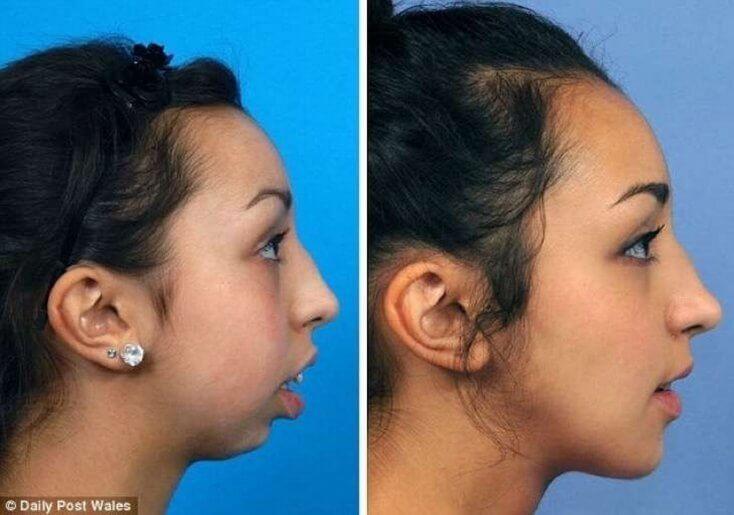 cirurgia na arcada dentaria