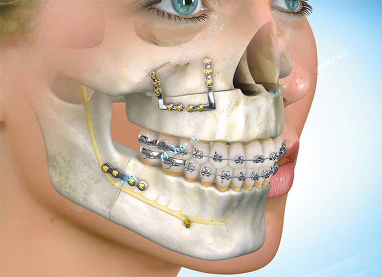 cirurgia ortognatica classe 3 preço