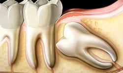 cirurgia de dente siso