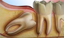 cirurgia dente de siso