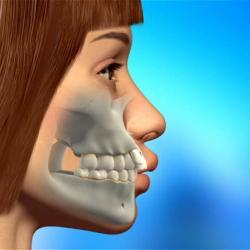 cirurgia da mandíbula