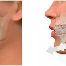 cirurgia mandibular preço