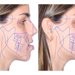 cirurgia no maxilar