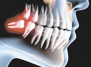 cirurgia de dente incluso