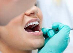 cirurgia de extração de dente
