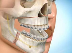 cirurgia de extração de siso