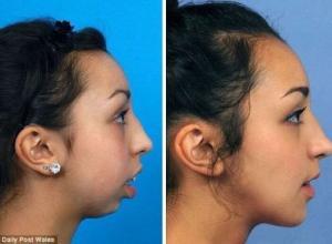 cirurgia de extração do siso
