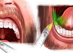 cirurgia de maxilar