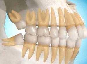 cirurgia de retirada de dente siso