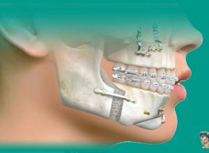cirurgia dentaria correção