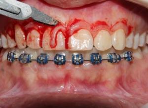 cirurgia dentaria gengiva