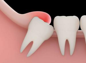 cirurgia dente queiro