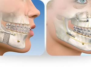cirurgia do maxilar inferior