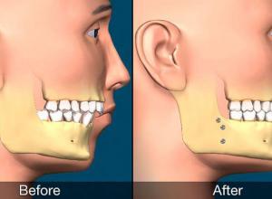 cirurgia maxilar preço