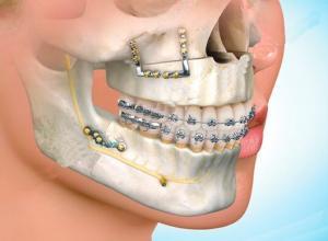 cirurgia oral e maxilofacial