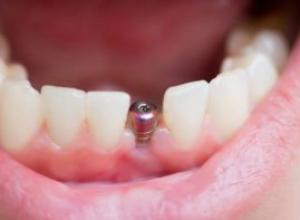 cirurgia para implante