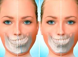 cirurgia para tirar o dente do siso