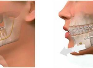 preço cirurgia ortognatica classe 3