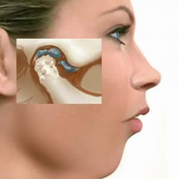 cirurgia dtm