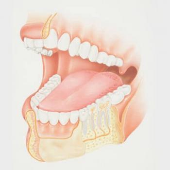 cirurgia extração dente siso
