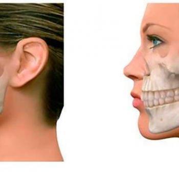 cirurgia na mandíbula quanto custa
