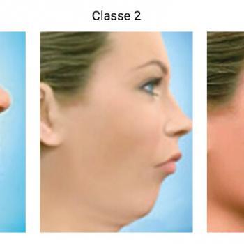 cirurgia ortognatica classe 1