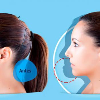 cirurgia ortognatica mandíbula