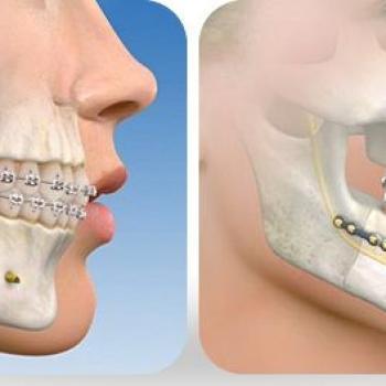valor cirurgia ortognatica